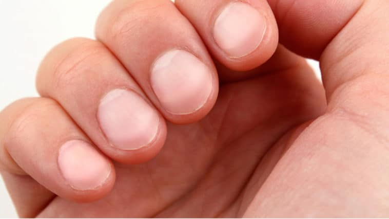 Fingernails tell about health